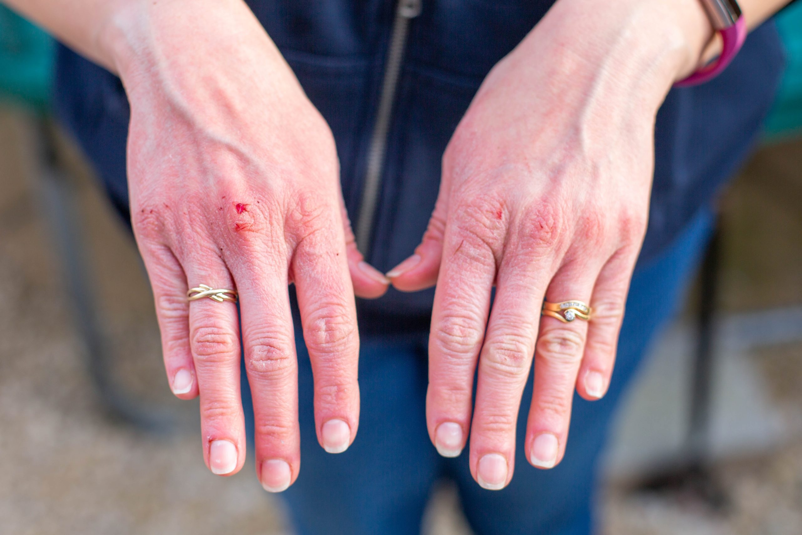 Zbavte sa popraskanej kože prírodne.